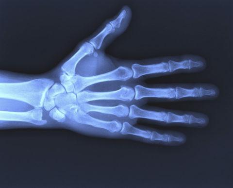 Для исключения трещин и переломов требуется рентгенологическое исследование