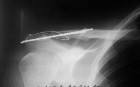 Фиксация ключицы спицами при остеосинтезе