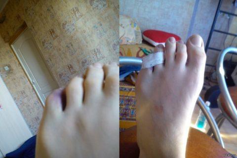 Фиксация повреждённого мизинца с помощью эластичного бинта к безымянному пальцу.