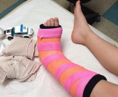 Фиксация поврежденной нижней конечности в голеностопном суставе гипсовой лонгетой