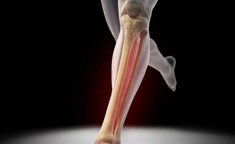 Фото: особенности восстановления целостности большеберцовой кости ноги
