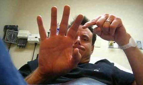 Фото: продолжительность сроков восстановления сломанного пальца на руке