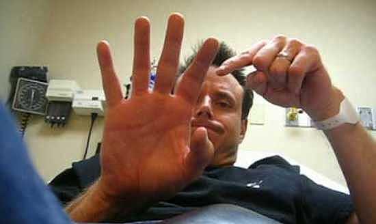 Перелом пальца в суставе протезирование зубов при мышечно-суставной дисфункции клиники в москве