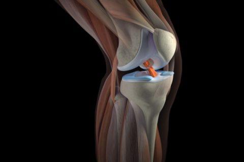 Фото: распространенная симптоматика поврежденности коленного сустава в теле человека