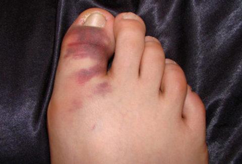 Фото: Сломанная фаланга пальца нижней конечности
