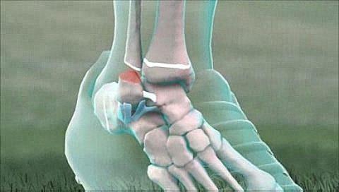 Функциональные осложнения при переломах лодыжек у человека