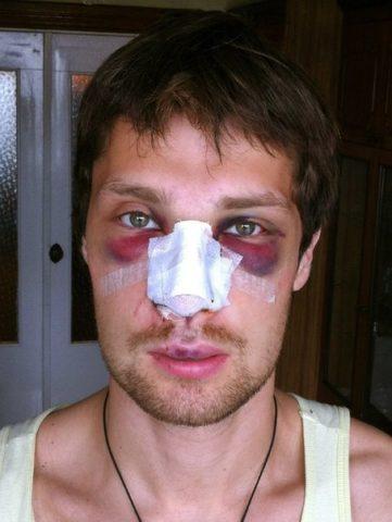 Гематомы под глазами - «симптом очков»