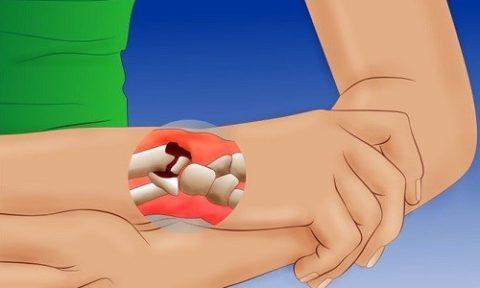 Характер болезненных ощущений при и после перелома запястья