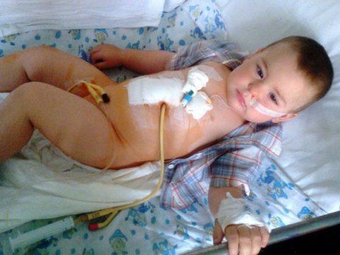 Химическое повреждение пищевода у годовалого ребенка