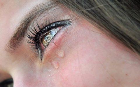 Химическое воздействие на слизистую оболочку глаз