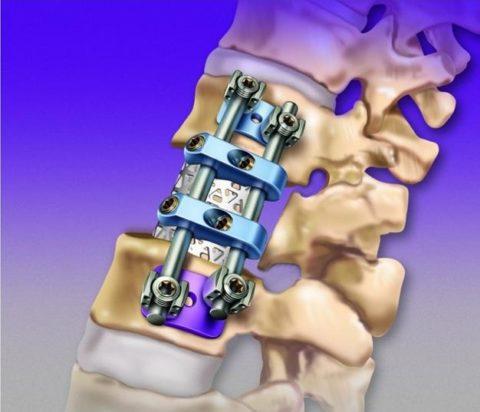 Искусственный имплантат, закреплённый пластинами, штырями и шурупами при полном замещении позвонка.