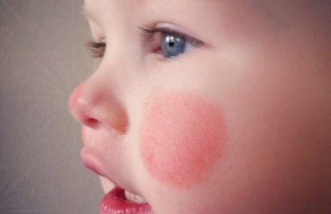 Как защитить детскую кожу от холода