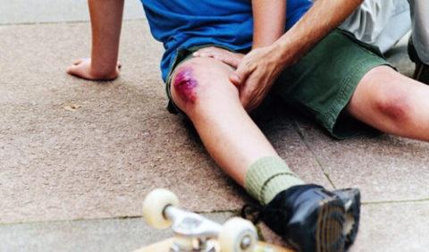 Классификация видов повреждений коленного сустава