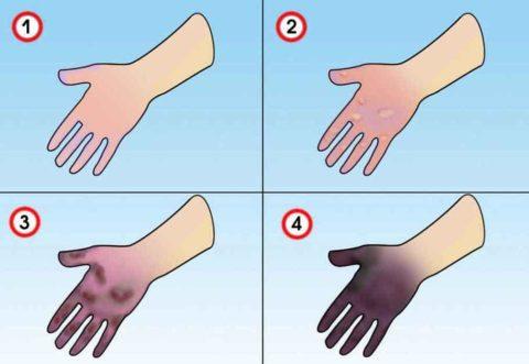 Комплекс мер первой помощи подбирают в зависимости от степени холодового поражения.