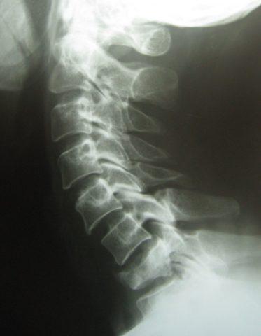 Компрессионная травма позвоночного столба без осложнения на рентгенологическом снимке.