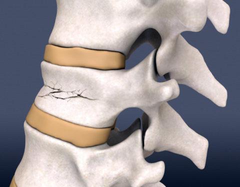 Компрессионный перелом позвонков – это разрушение костной ткани после механического повреждения, сдавливания или осложнение хронического заболевания костной ткани.