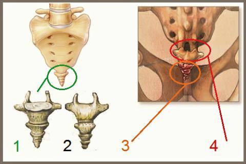 Копчик: вид спереди (1); вид сзади (2); переломы позвонков (3); вывих крестцово-копчикового сочленения (4)