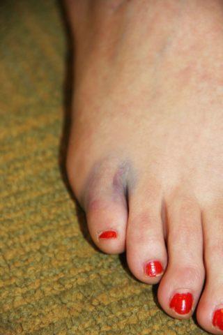 Кровоизлияние и синюшность у основания мизинца говорят о застарелом переломе.