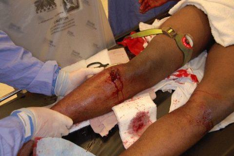 Кровотечение по причине нарушения целостности большой берцовой кости
