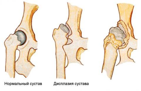 Механизм образования ложного сустава