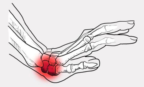 Механизм повреждения целостности костей запястья человека