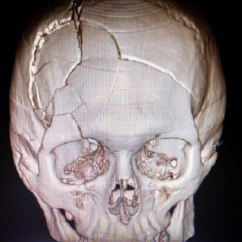 Множественные фрактуры свода черепа со смещением отломков.