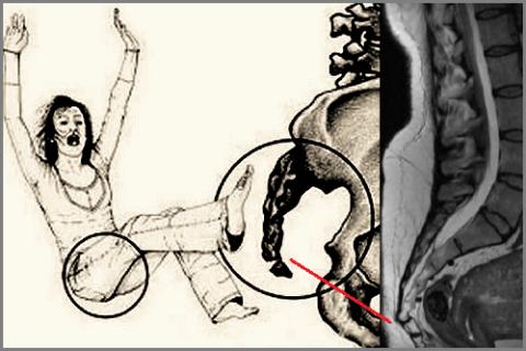 МРТ перелома копчика