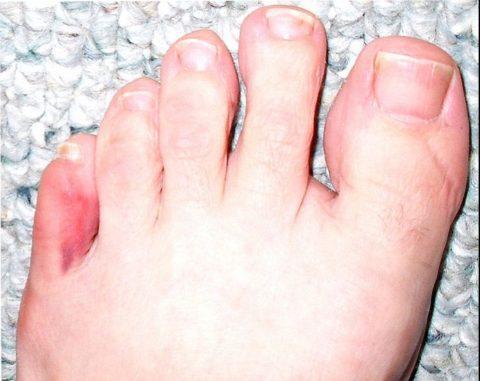 На фото изображён перелом мизинца левой ноги у пациента средних лет. Причиной травмы стал прямой удар пальцем о край дивана.