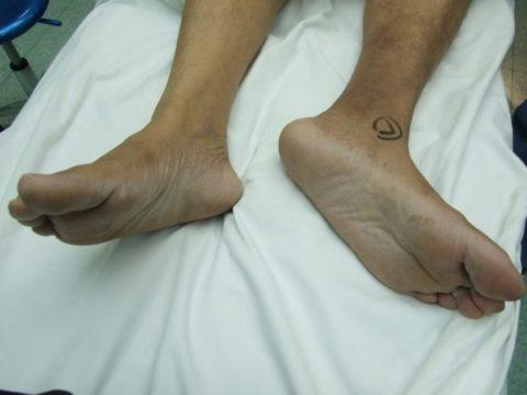 На фото один из симптомов травмы шейки бедра. Повреждённая конечность непроизвольно вывернута наружу.