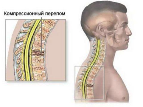 На фото представлена компрессионная травма спины.
