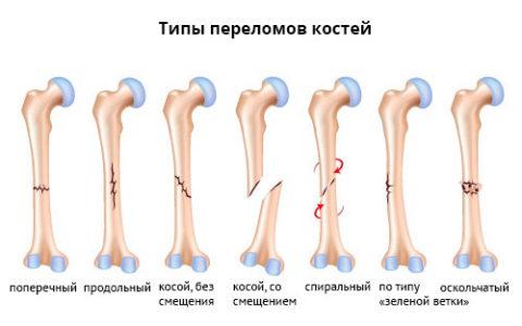 На фото типы повреждений костей голени.