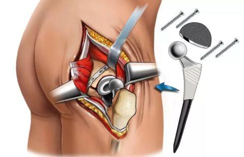 На картинке изображено эндопротезирование шейки бедра с использованием метало – конструкции и металлических винтов.