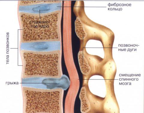На картинке изображено строение позвоночного столба и грыжа межпозвоночного диска, как осложнение компрессионного перелома.