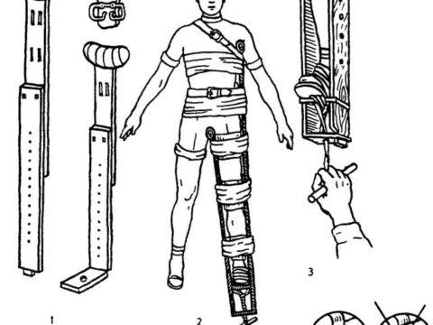 На картинке изображены шины Дитерихса и правильное наложение их на пострадавшего.