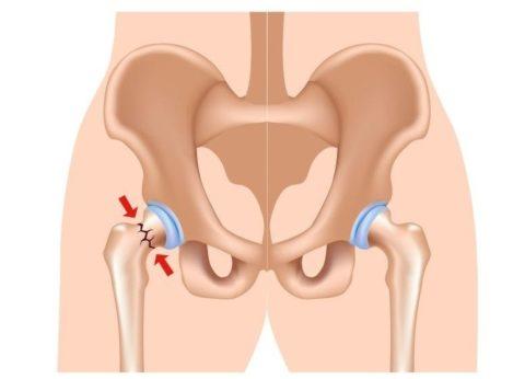 На картинке представлен наглядный пример бедренной кости в норме (справа) и с переломом (слева).