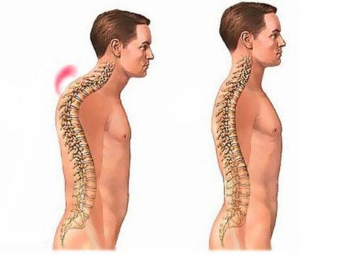 На картинке представлен развивающийся патологический процесс после лечения компрессионного перелома грудного отдела позвоночника.