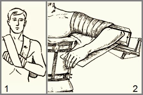 На рисунке: 1 – повязка «змейка»; 2 – отводящая шина с вытяжением за локтевой отросток