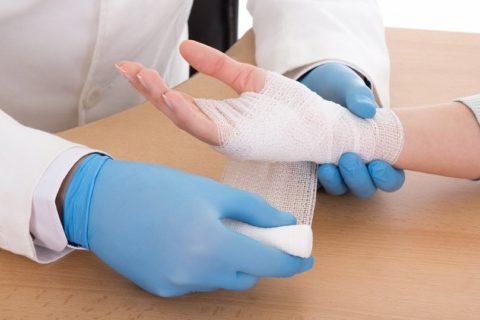 Накладывание фиксирующей гипсовой повязки для предупреждения повторного смещения отломков