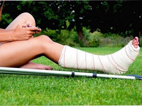 Наложение гипсовой повязки для иммобилизации берцовой кости для срастания