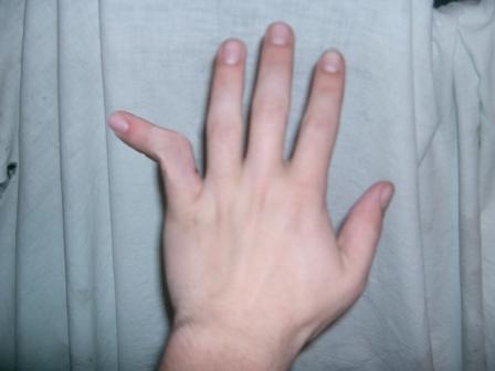 Неестественное положение пальца