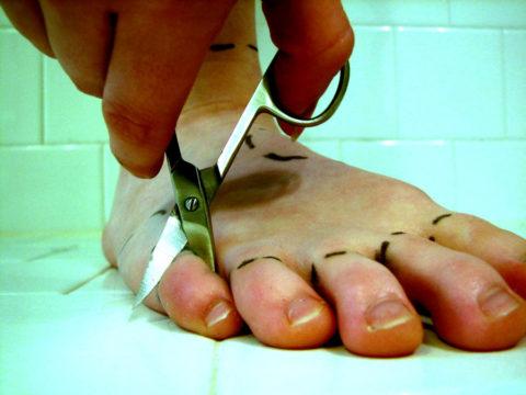 Некротизированные участки подлежат хирургическому иссечению.