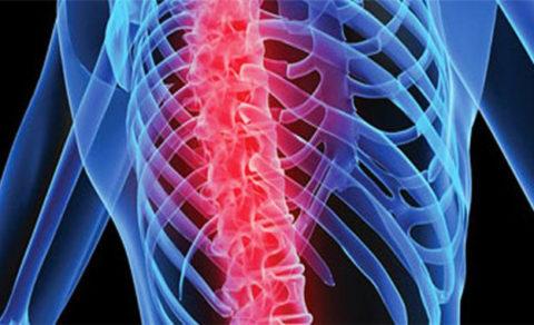 Нередки переломы ребер и позвоночника