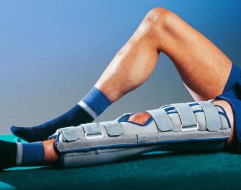 Обездвиживание как основа лечения сломанной берцовой кости нижней конечности