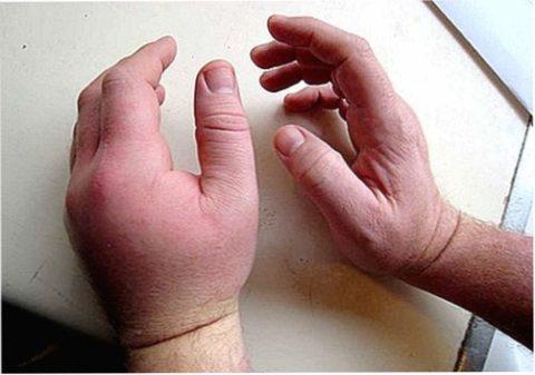 Образование гематом под кожей в результате сильного удара