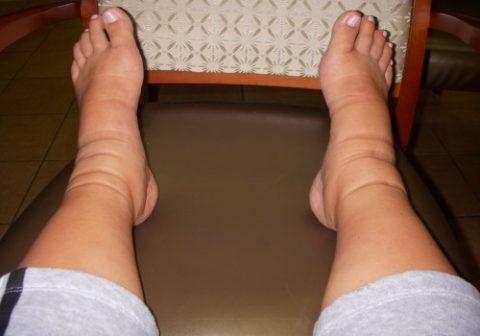 Образование отеков как симптом сломанной кости голени