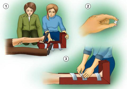 Один из методов транспортировки пострадавшего с места происшествия лёжа на твёрдых носилках.
