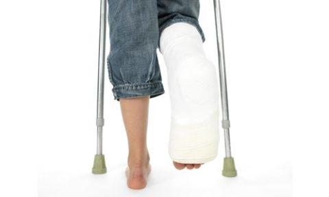 Ограниченность движений пострадавшего со сломанной берцовой костью