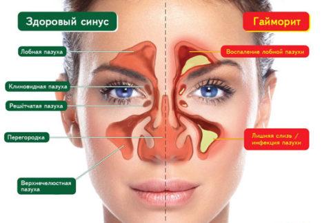 Околоносовые пазухи и осложнения после травмы
