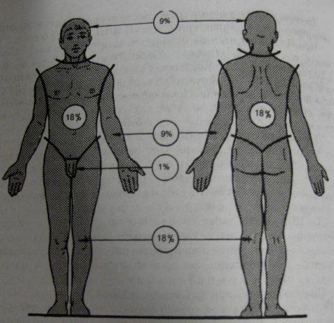 Определение площади по «правилу девяток»