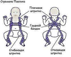 Ортопедическое приспособление